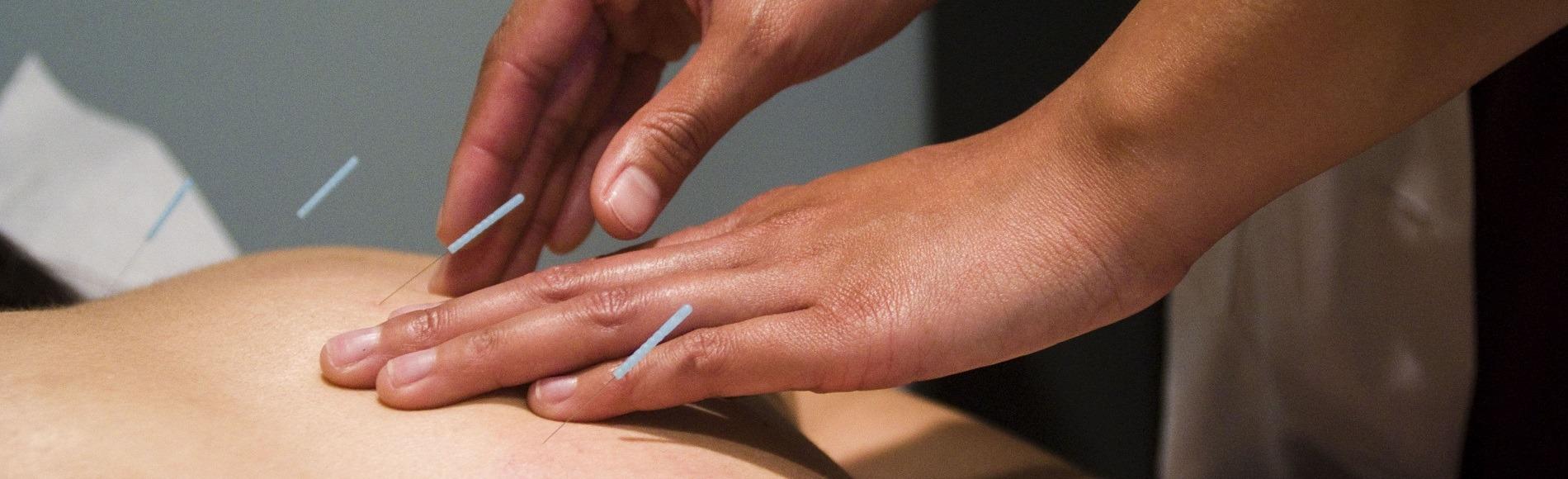acupuncture-neck